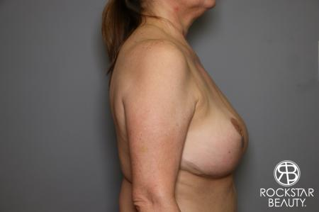 Mastopexy: Patient 2 - After Image 4