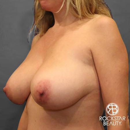 Mastopexy: Patient 1 - Before Image 4