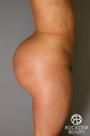 Brazilian Butt Lift: Patient 14 - After Image 3