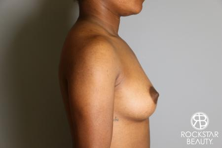 Breast Augmentation: Patient 10 - Before and After Image 3