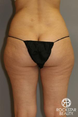 SmartLipo®: Patient 1 - Before and After Image 2