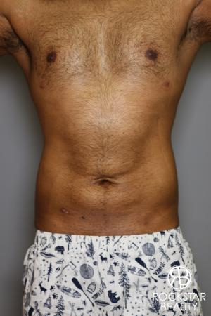 Liposuction: Patient 16 - After Image 5