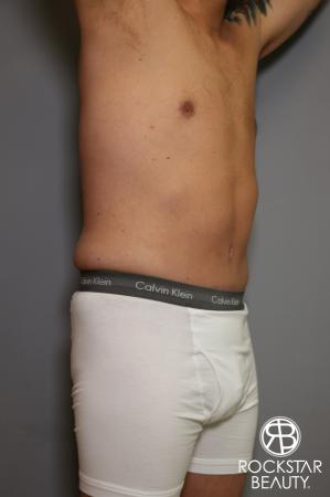 Tummy Tuck: Patient 5 - After Image 3