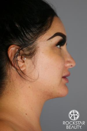 SmartLipo®-Face/Neck: Patient 2 - After Image 2