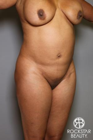 Brazilian Butt Lift: Patient 11 - Before Image 2