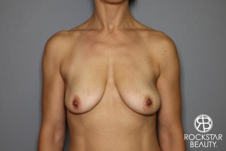Breast Augmentation: Patient 12 - Before Image 1