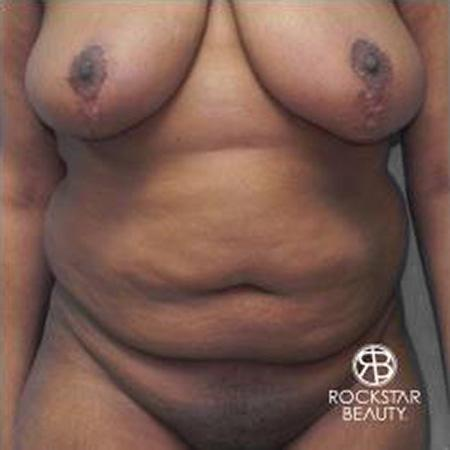 Tummy Tuck: Patient 9 - Before Image