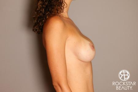 Breast Implant Exchange: Patient 7 - Before and After Image 5