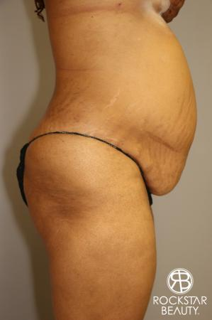 Tummy Tuck: Patient 3 - Before Image 3