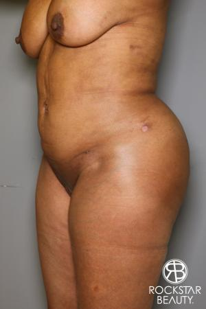 Brazilian Butt Lift: Patient 11 - After Image 3