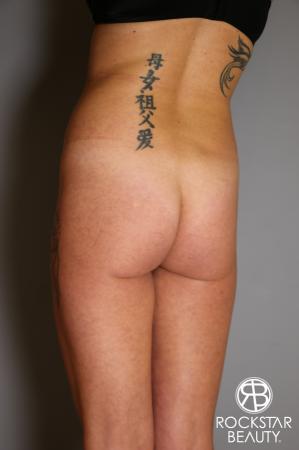 Brazilian Butt Lift: Patient 6 - Before Image 3
