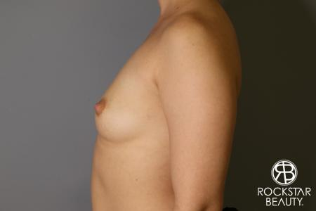Breast Augmentation: Patient 16 - Before Image 4