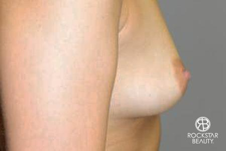 Breast Augmentation - Fat: Patient 1 - Before and After Image 3