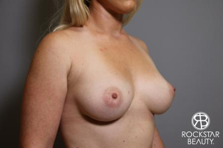 Breast Augmentation: Patient 15 - Before Image 2