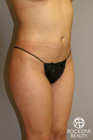 Liposuction: Patient 14 - Before Image 3