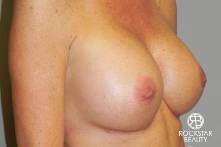 Breast Augmentation: Patient 5 - After Image 2