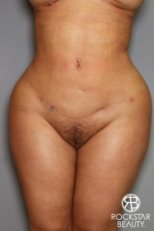 Brazilian Butt Lift: Patient 14 - After Image 2