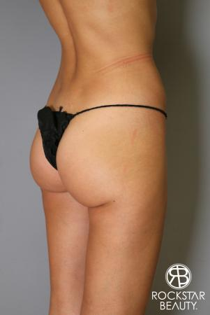 Liposuction: Patient 15 - Before and After Image 3