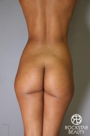 Brazilian Butt Lift: Patient 8 - Before Image