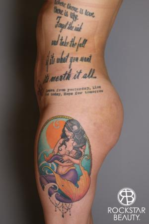 Brazilian Butt Lift: Patient 17 - After Image 5