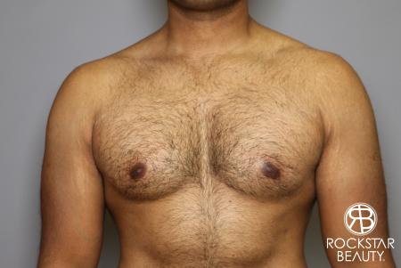 Liposuction: Patient 16 - Before Image 3