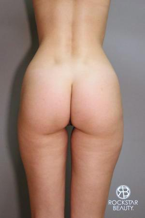 Liposuction: Patient 9 - After Image 1