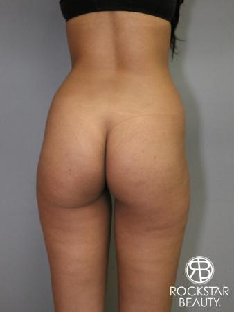 Liposuction: Patient 6 - Before Image 1
