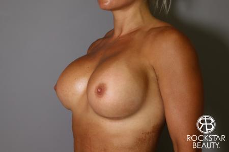 Breast Implant Exchange: Patient 9 - After Image 4