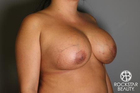 Breast Implant Exchange: Patient 1 - After Image 3