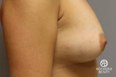 Breast Augmentation - Fat: Patient 1 - After 3