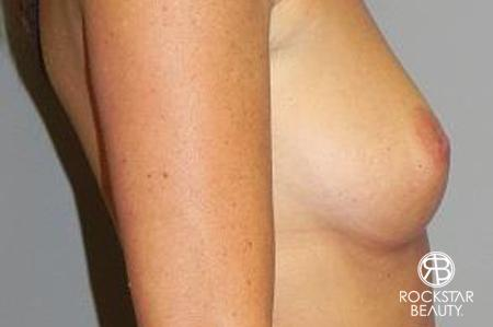 Breast Augmentation: Patient 5 - Before and After Image 3
