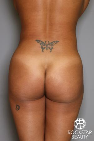 Brazilian Butt Lift: Patient 9 - After Image 1