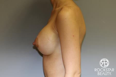 Breast Augmentation: Patient 17 - After Image 3