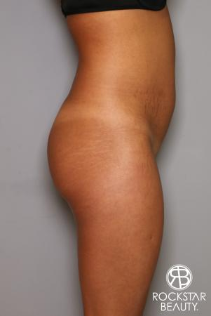Brazilian Butt Lift: Patient 9 - Before Image 2