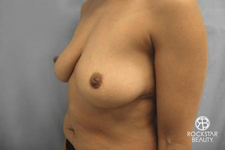 Combo Procedures - Breast: Patient 1 - Before Image 4