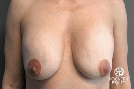 Breast Implant Exchange: Patient 2 - Before Image