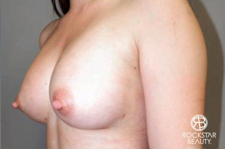 Breast Augmentation: Patient 6 - After Image 4