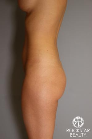 Brazilian Butt Lift: Patient 2 - Before Image 2
