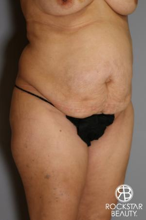 Tummy Tuck: Patient 13 - Before Image 2