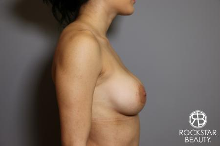 Breast Implant Exchange: Patient 5 - Before Image 3