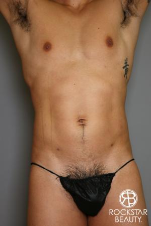Liposuction: Patient 17 - After Image 5