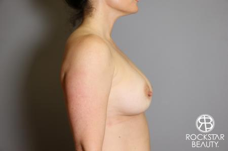 Breast Implant Exchange: Patient 6 - Before Image 3
