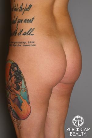 Brazilian Butt Lift: Patient 17 - Before Image 3