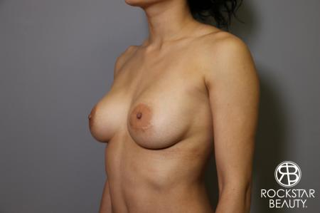 Breast Implant Exchange: Patient 5 - Before Image 4