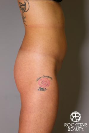 Brazilian Butt Lift: Patient 6 - Before Image 4
