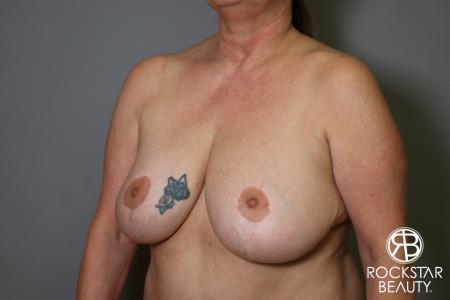 Mastopexy: Patient 2 - Before Image 3