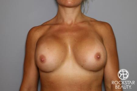 Breast Implant Exchange: Patient 9 - After Image 1