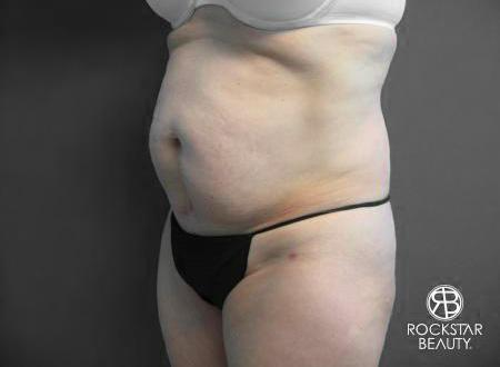 Tummy Tuck: Patient 6 - Before Image 3