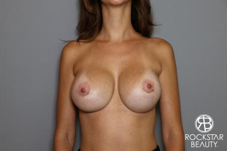 Breast Implant Exchange: Patient 7 - After Image 1
