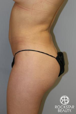 Liposuction: Patient 14 - Before Image 4